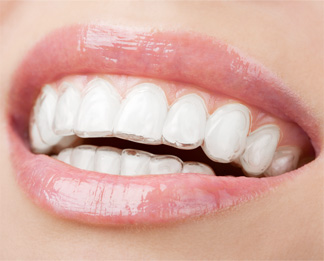 invisalign - ortodonzia invisibile