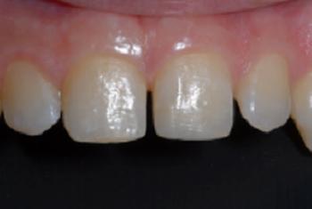 restaurativa - Restauro dente