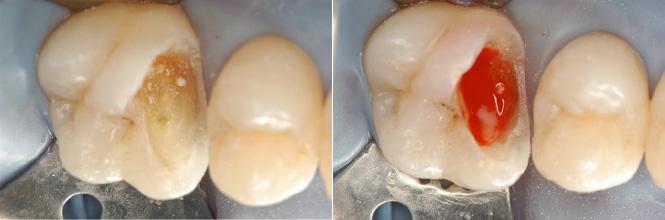 endodonzia - trattamento canalare con ricostruzione