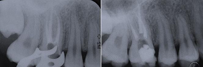 Endodonzia - Terapia canalre